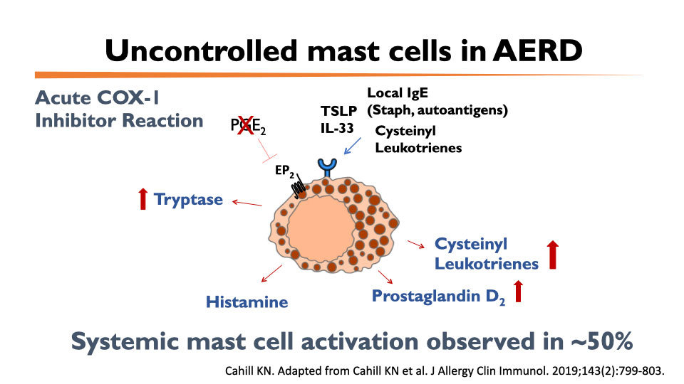 Cahill Lab research - Uncontrolled mast cells in AERD