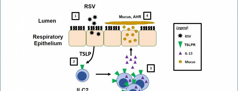 Aberrant Type 2 Responses to RSV