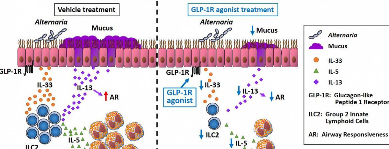 GLP-1R signaling inhibits innate allergic immune response