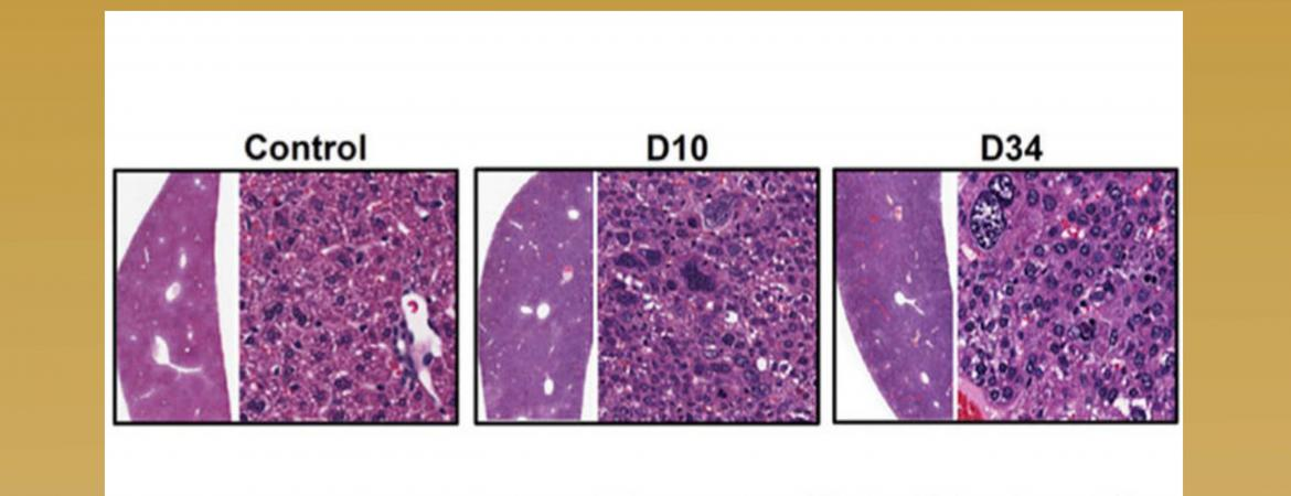 Liver carcinogenesis in ASTxCre-ERT2 mice. Hematoxylin and eosin (H&E) staining of liver sections collected at D10, and D34 after Tam treatment.