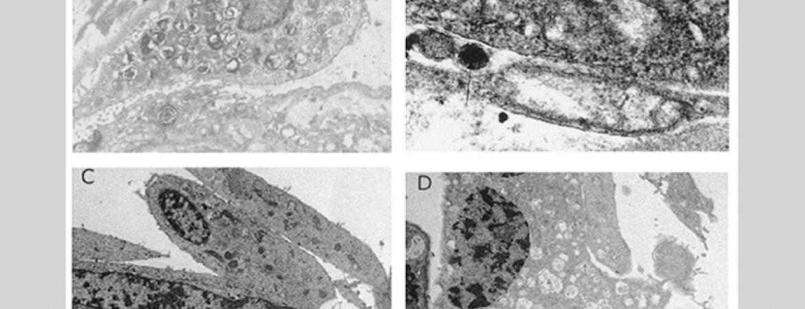 The Vanderbilt Pulmonary Fibrosis Research Group identified mutations in the gene encoding for surfactant protein C as the first genetic cause of pulmonary fibrosis (Thomas et al. AJRCCM 2002. 165:1322-8)