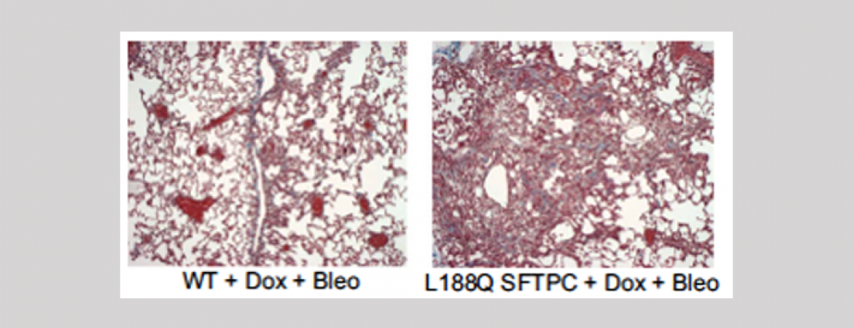 We found that endoplasmic reticulum stress directly promotes lung fibrosis (Lawson et al, AJPLCMP 2008. 294:1119-26; Lawson et al. PNAS 2011. 108:10562-7.)