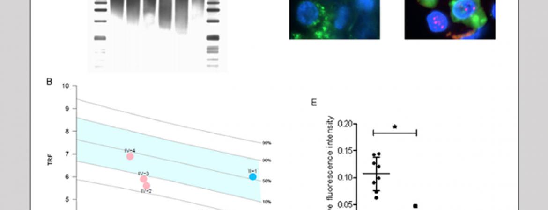We described mutations in DKC1 as a novel genetic cause of pulmonary fibrosis (Kropski et al. Chest 2014. 146:e1-e7)