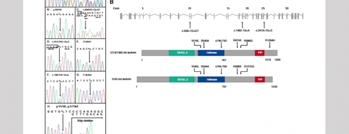 We discovered mutations in RTEL1 as a cause of FIP (Cogan et al. AJRCCM 2015. 191:646-55)